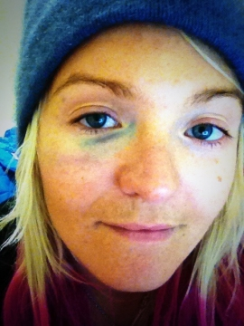 Mercedes Nicoll's black eye, two days after she crash landed during halfpipe training at Sochi 2014